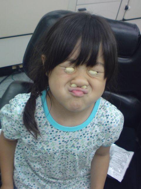 【子どもおもしろ画像】目と鼻にピーナッツを詰めた子どもの変顔が面白すぎます(笑)