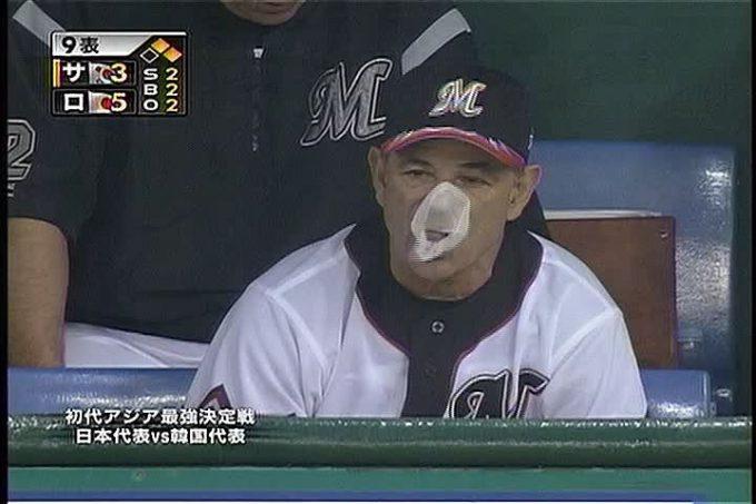 【テレビの野球おもしろ画像】風船ガムをマスクのようにつけるバレンタイン元監督(笑)