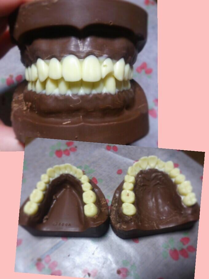 【バレンタインチョコおもしろ画像】歯科系の学生が作ったバレンタインの入れ歯チョコ(笑)