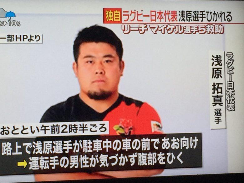 【珍事件画像】車に腹部をひかれても目立った外傷がないラグビー日本代表の選手!